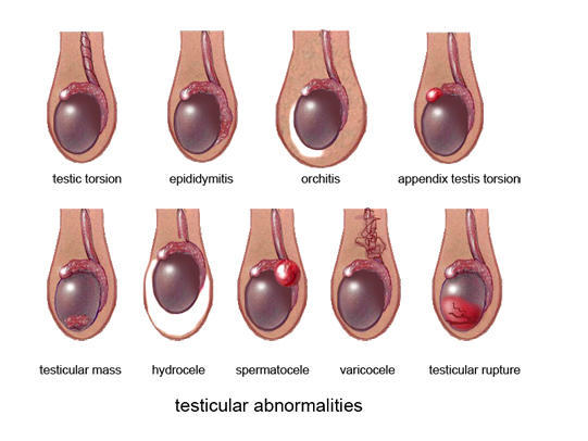 Testicular Cancer Signs - Ultrasound: 3D Scans, Pregnancy Scans